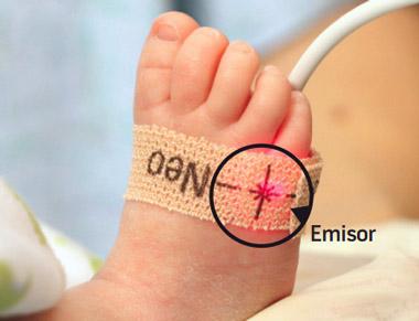 Detección de CCHD en recién nacidos