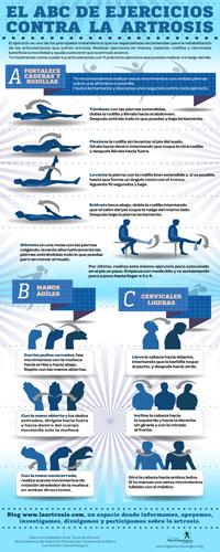 Infografía Artrosis